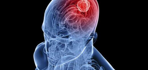 психические расстройства при эпилепсии
