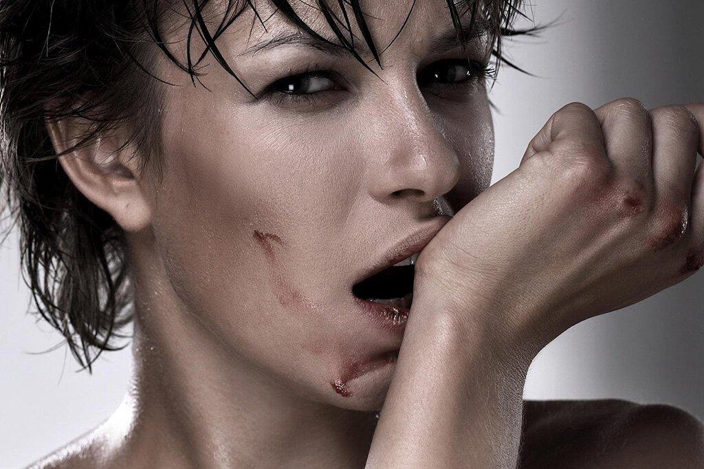 Истерический невроз у женщин